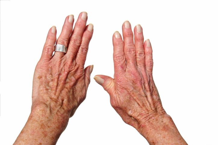 Rheumatoid Arthritis Patients Are Using Medical Marijuana — Here's Why